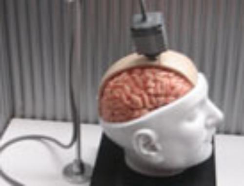 Neuralink : le projet fou de cerveau connecté d'Elon Musk